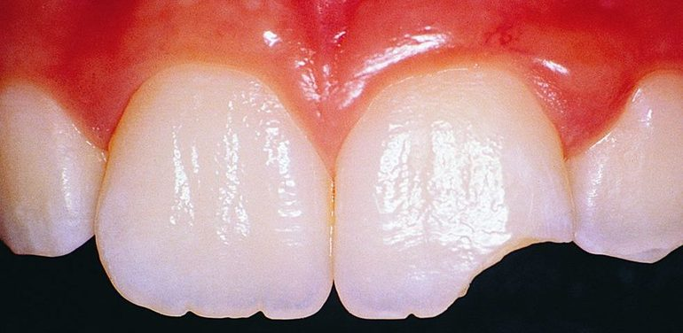 Раскололся зуб во сне без крови thumbnail
