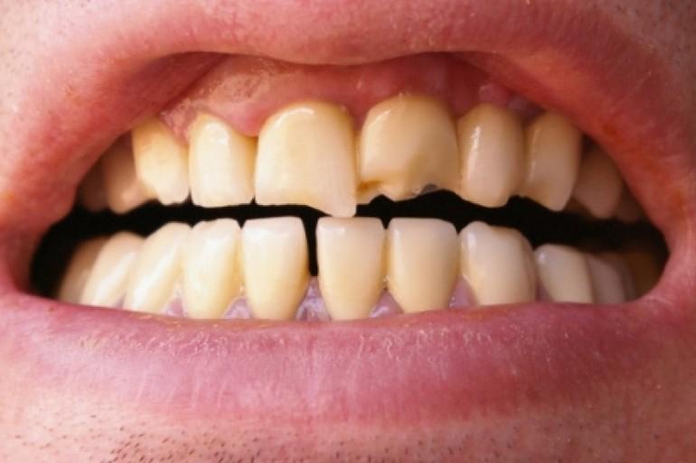 Откололся зуб во сне без крови сонник