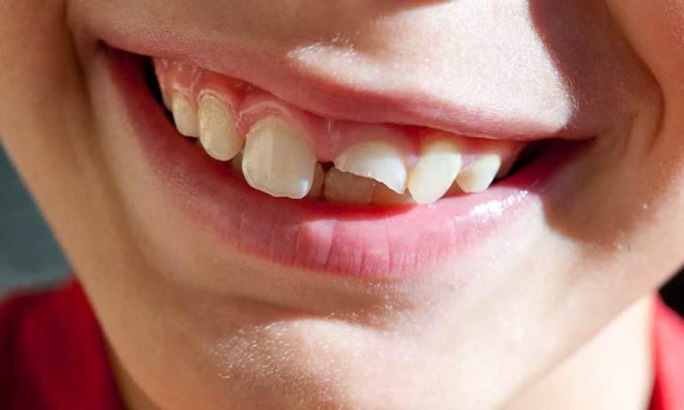 Откололся зуб без крови к чему