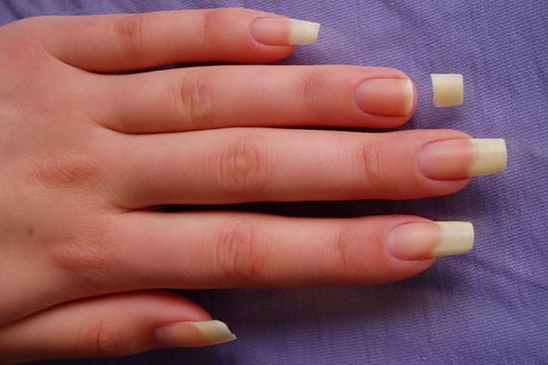 К чему снятся нарощенные сломанные ногти на руках thumbnail