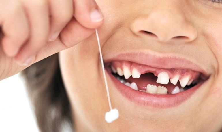 Выдернуть шатающийся зуб