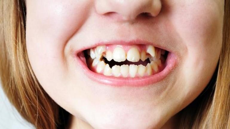 К чему снятся кривые зубы