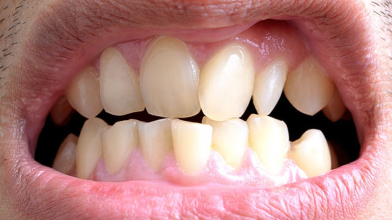 Кривые зубы во сне