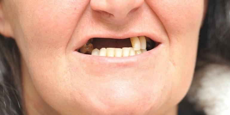 Утрата кривых зубов во сне