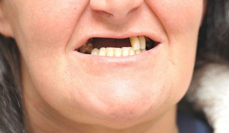 Иные толкования ведут к тому, что сломанные зубы — к потерям.