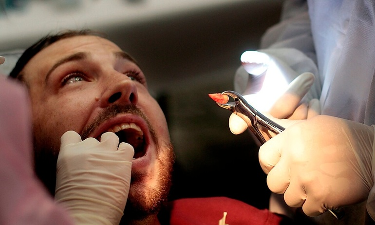 Вырвать зубы во сне в кабинете врача