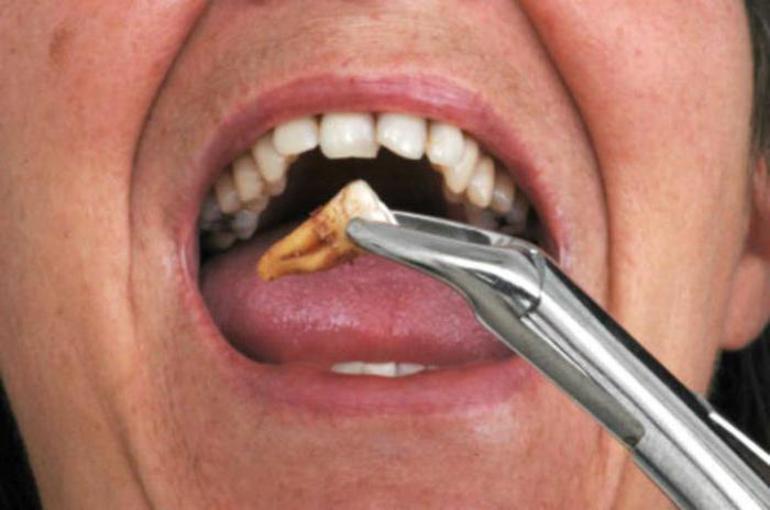 Вытащить свой зуб без крови