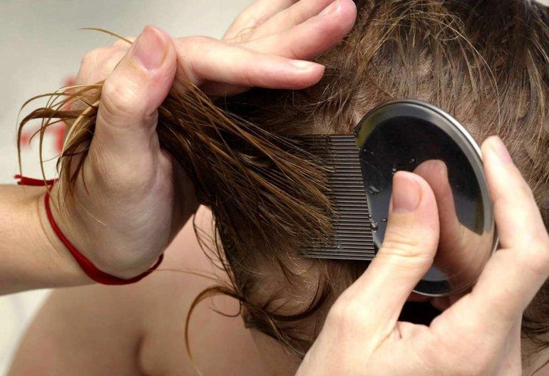 К чему сняться вши – калейдоскоп популярных сонников