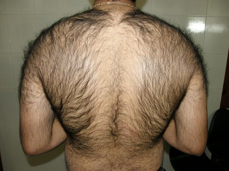 Сонник волосатая спина