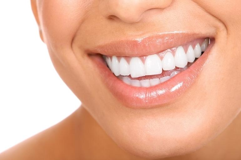 Приснились белые зубы