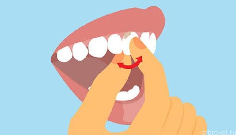 Шатающийся зуб