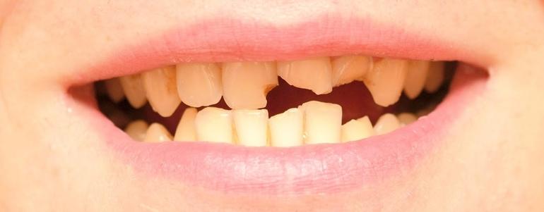 Если зубы крошатся и рушатся