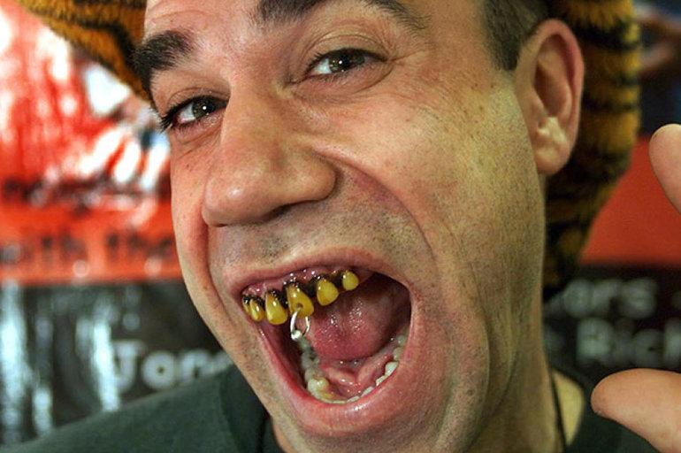 Чёрные и грязные зубы,