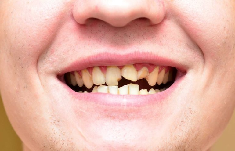 К чему видеть во сне потерю зуба