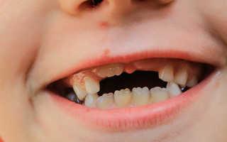 Толкование по сонникам сна, где вырос новый зуб
