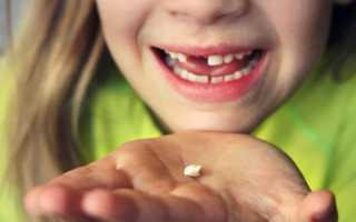 К чему снится выпадение зубов по соннику