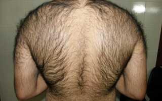 Волосатая спина: толкование сонников