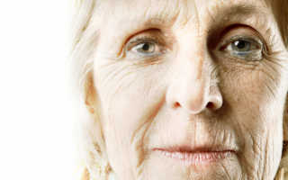 К чему снятся морщины на лице и вокруг глаз по соннику