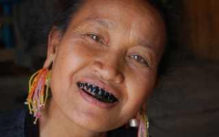 К чему снятся черные зубы — толкование сна по сонникам
