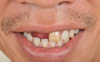 К чему снятся выбитые зубы с кровью или без