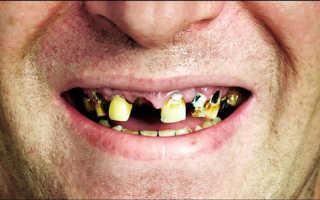 Толкование сонников: к чему могут сниться гнилые зубы