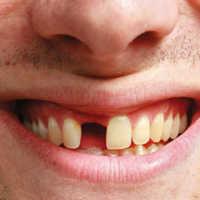 К чему приснилось, что выпал передний зуб во сне