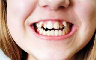 К чему снятся кривые зубы: толкования сонников