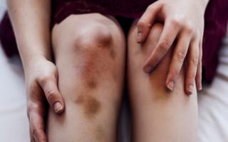 Почему снятся кровяные синяки на своём теле или другом человеке