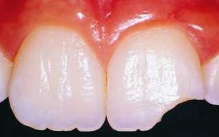 Что значит откололся зуб во сне по соннику