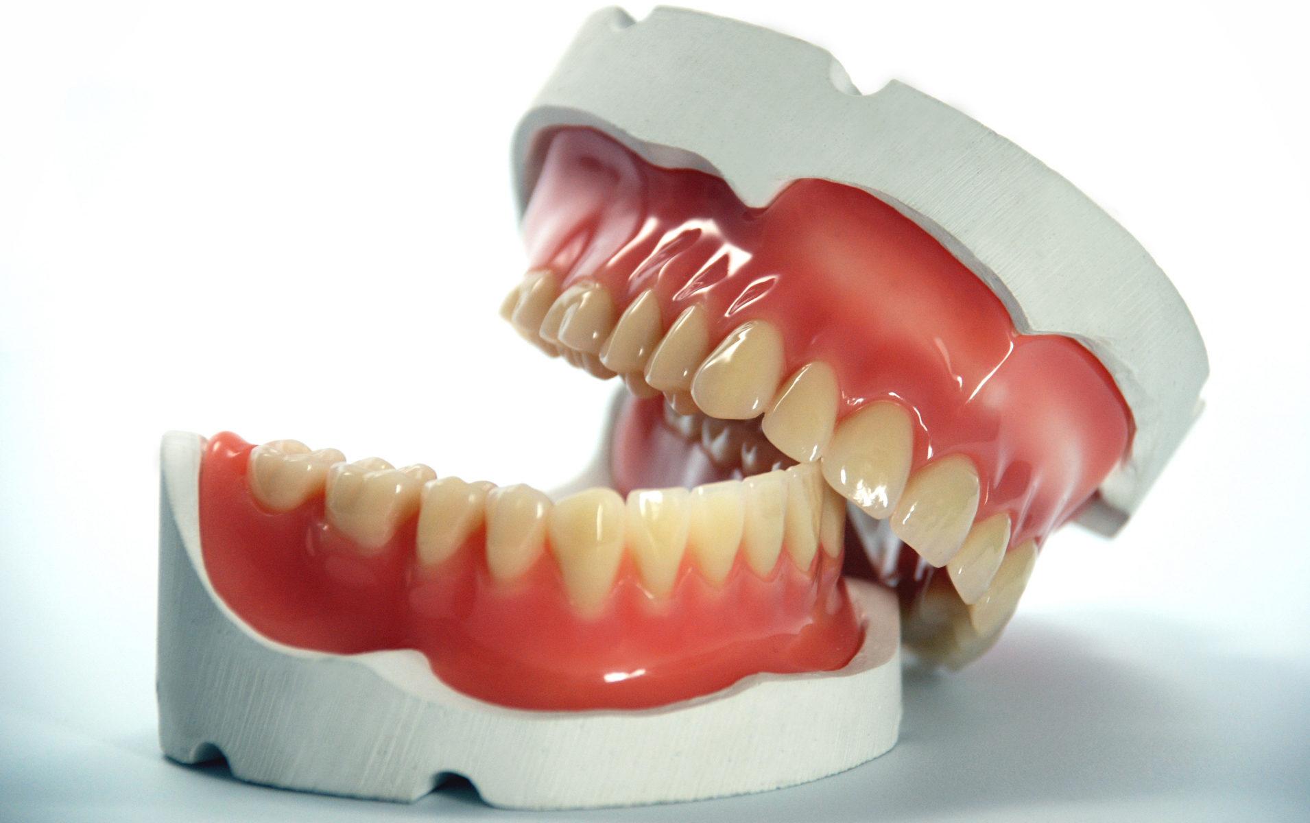 к чему снится выпадение зубных протезов