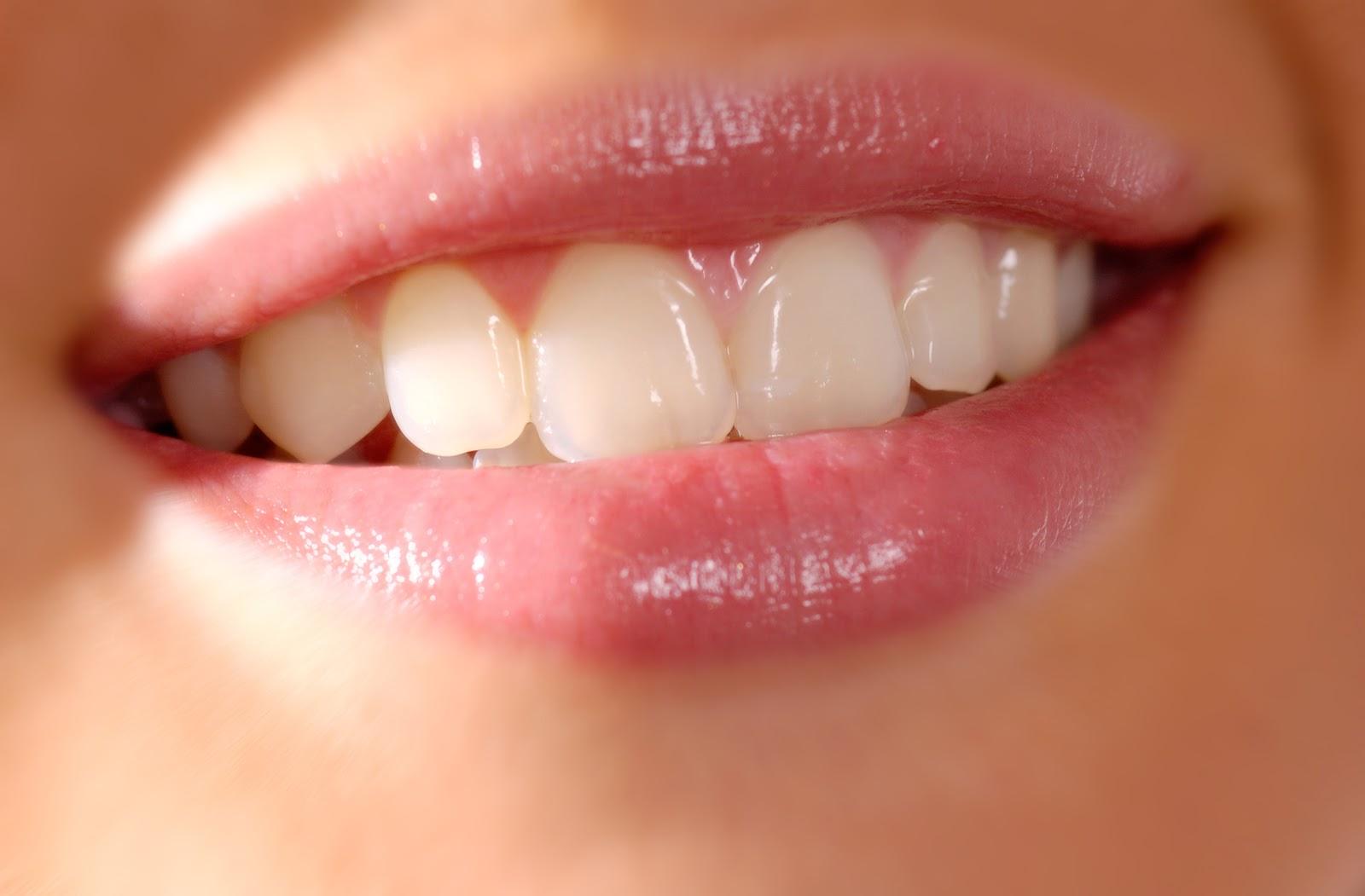 красивые ненастоящие зубы