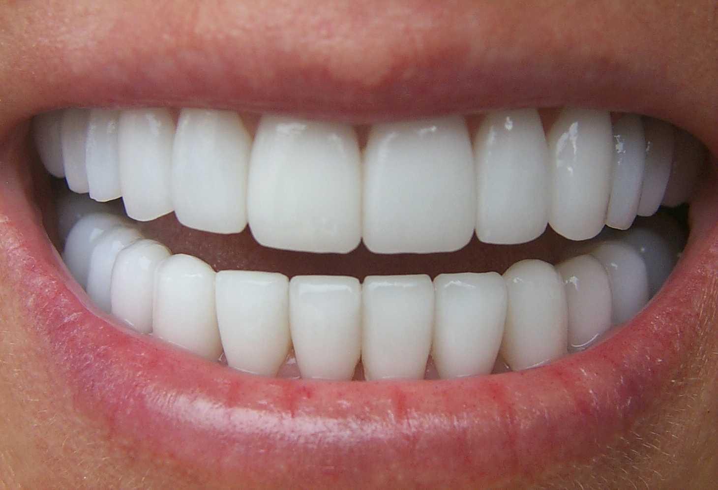вставная челюсть с зубами